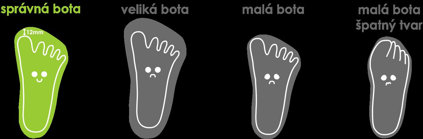 Ukázka správné a nesprávné obuvi